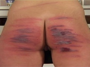 Real Hard Spanking   Caned Ass
